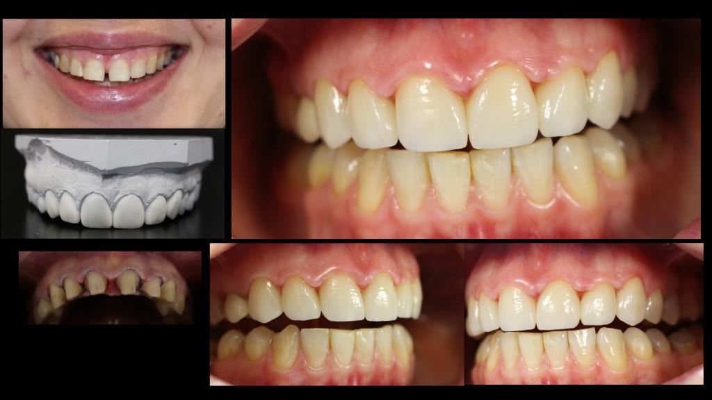 Patsient soovis vabaneda diasteemist, taastatud esteetiliste E.max kroonidega. Laboris on tehtud esteetiline vahatus, mille järgi arst prepareeris hambad ja tehnik valmistas E.max kroonid